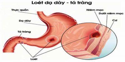 Viêm Dạ dày - Tá tràng: Nguyên nhân và cách điều trị
