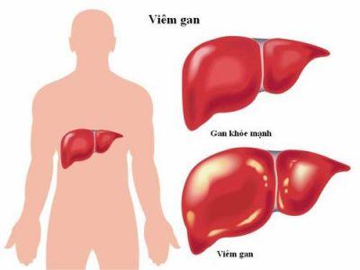 Viêm gan B có dùng tinh nghệ Nano Curcumin được không?